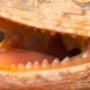 Teeth and Disease